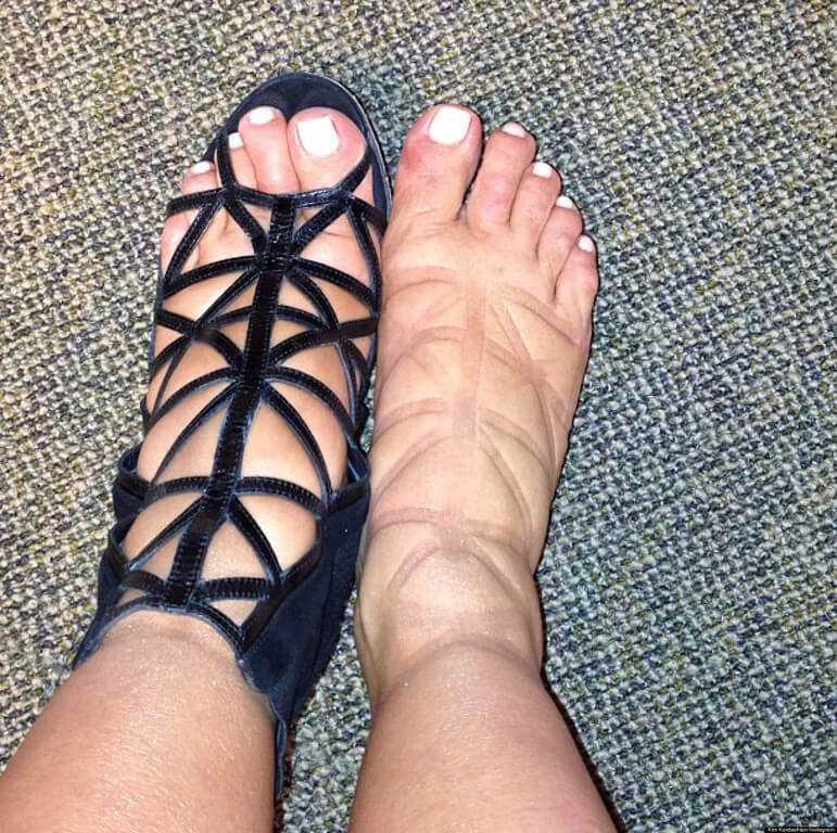 ноги опухли от обуви
