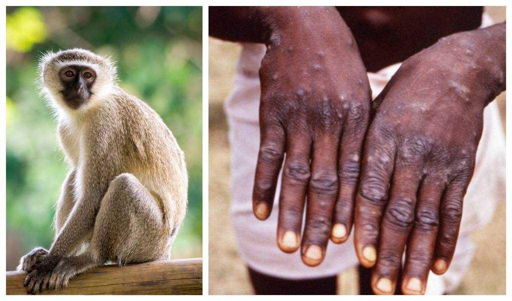 Вирусологи рассказали риске о проникновения оспы обезьян в Россию