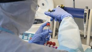 Назвали частые осложнения после перенесенного коронавируса